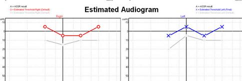 Ocenjen pražni tonski avdiogram