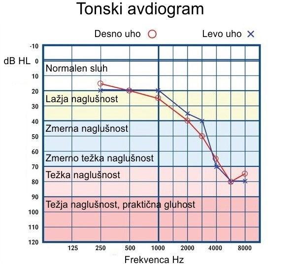 Pražna tonska avdiometrija