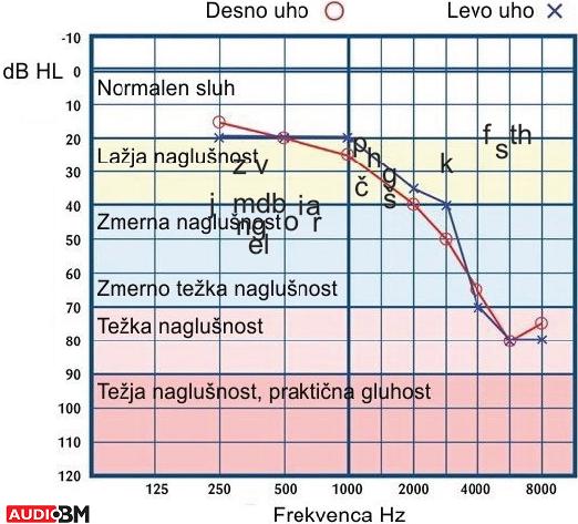 Pražni tonski avdiogram