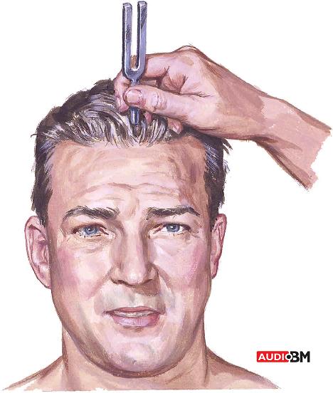 Weber test - preiskave sluha